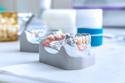Zahnzusatzversicherung Vergleich: Jetzt den besten Tarif finden und beantragen